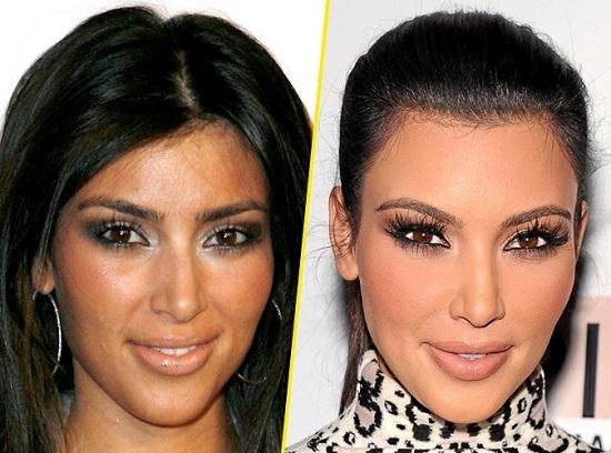 Kim-Kardashian-avant-apres-chirurgie-jewanda