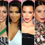 People : 25 stars avant et après la chirurgie esthétique
