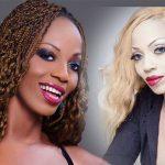 People : 10 célébrités africaines avant et après le blanchiment de leur peau